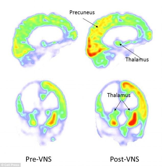 Imagens da linha de base (à esquerda, pré-VNS) e 3 meses após a estimulação do nervo vago (no direito, pós-VNS). O metabolismo aumentou no córtex parieto-occipital direito, tálamo e estriado. Foto: Corazzol et al.