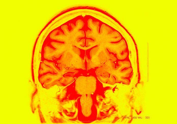 Ressonância magnética de cérebro epiléptico