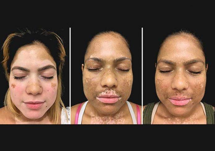 Paciente com vitiligo no início do tratamento experimental (esquerda)