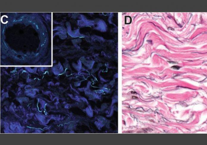 Feixes de colágeno fibrilar (azul esc.) e colágeno (rosa) - Fotos: JILL GREGORY / MOUNT SINAI HEALTH SYSTEM