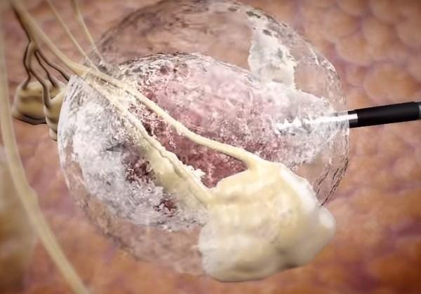 Ilustração de como a tecnologia da IceCure Medical congela os tumores usando uma sonda e temperaturas extremamente baixas