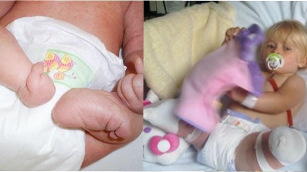 Daisy nasceu com uma deformação Foto: reprodução instagram