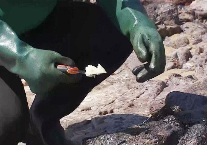 Biogel sendo aplicado em PE - Foto: Reprodução/TV Globo|