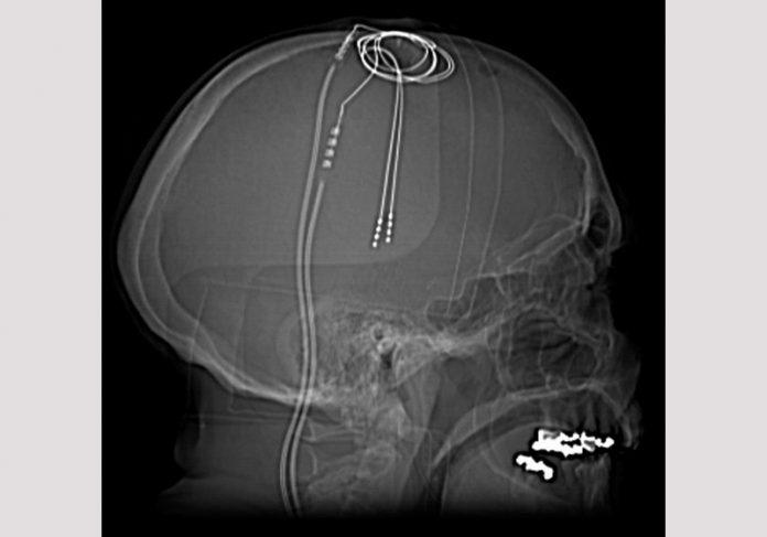 Estimulação cerebral / Parkinson- Foto: Dr. Craig Hacking