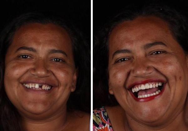 sorriso6