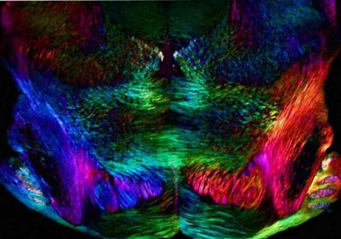 Embora o estudo tenha sido feito em cobaias - a foto mostra neurônios de camundongos - o mesmo mecanismo ocorre em humanos. Foto: University of Cambridge]