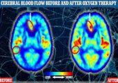Os dois exames de ressonância magnética do cérebro de participantes humanos indicam o fluxo sanguíneo antes (à esquerda) e depois (à direita) de um dos participantes do estudo fazer a oxigenoterapia. Foto: Divulgação