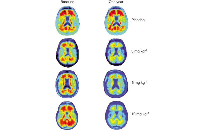 Efeitos no cérebro após 1 ano de diferentes dosagens - Foto: Nature