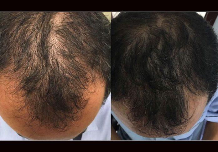 Antes e depois de Marcelo Aparecido da Silva - Fotos: arquivo pessoal|Antes e depois de Marcelo Aparecido da Silva - Fotos: arquivo pessoal