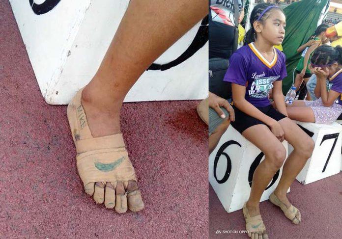 Rhea Bullos com ataduras desenhadas - Foto: reprodução / redes sociais