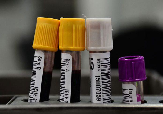 Exames de sangue - Foto: Fernando Frazão /Agência Brasil