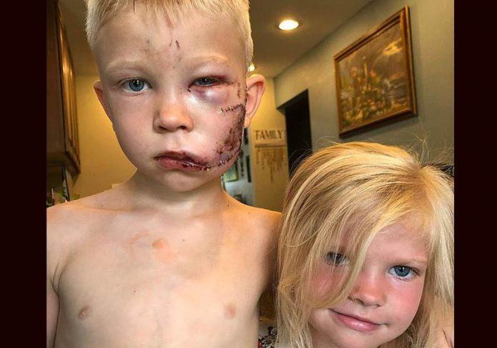 Briger e a irmã que salvou - Foto: @nicolenoelwalker