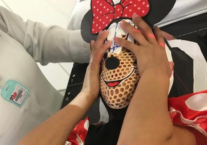 Máscara usada por Paloma - Foto: Hospital Baleia /divulgação