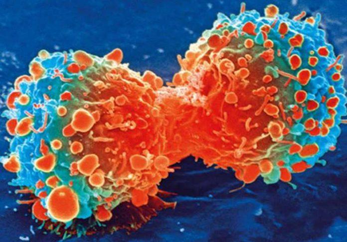 Célula cancerosa durante a divisão celular Foto: National Institutes of Health