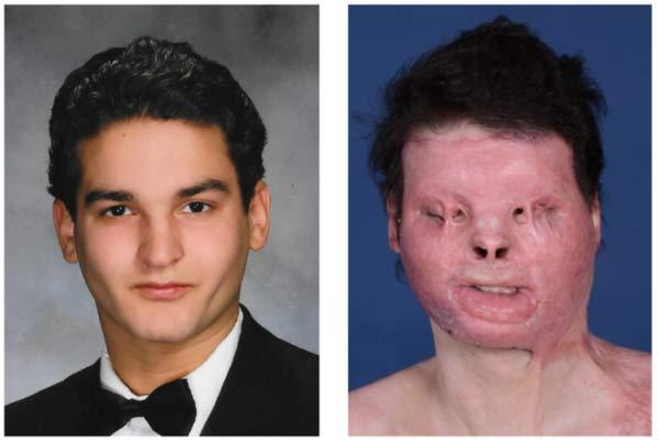 O jovem antes e após o acidente - Reprodução/ NYU Langone Health