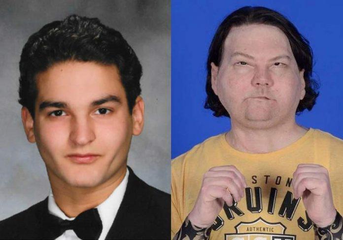 Joe DiMeo antes do acidente e agora - Foto: Reprodução/ NYU Langone Health