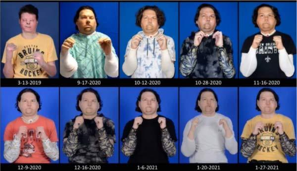 Evolução do paciente - Foto: reprodução/ NYU Langone Health