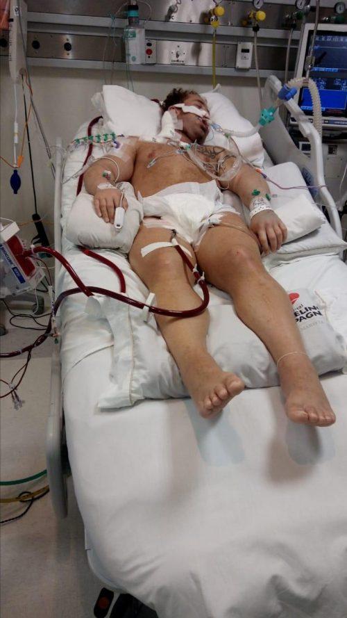 Kaíque intubado na UTI - Foto: 07/2020 - arquivo pessoal