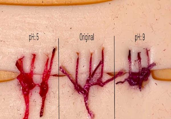 Fio de sutura mudando de vermelho para roxo após 5 minutos detecta infecção Foto: Society for Science