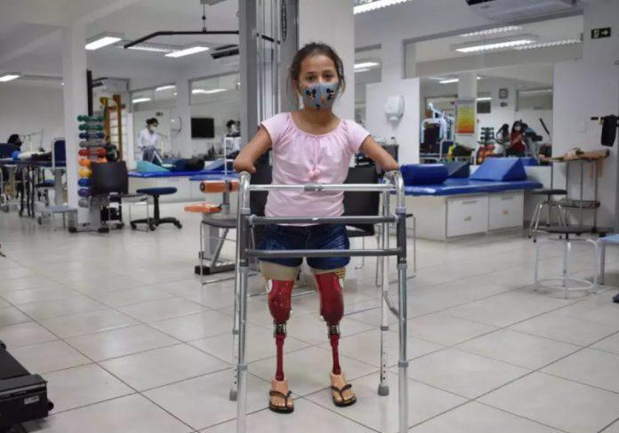 Raísa com as próteses que ganhou da Mulher Maravilha, personalizadas -Foto: Assessoria Apae
