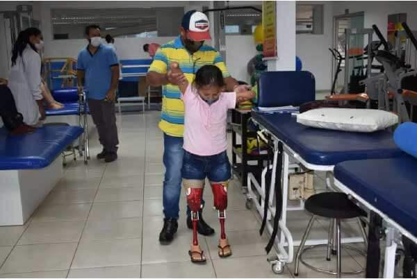 Pai ajuda a filha na adaptação das próteses - Foto: Assessoria Apae