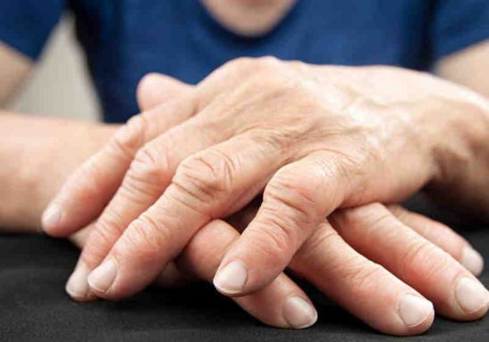 O imunizante à base de proteína pode ser promessa para prevenir artrite reumatoide - Foto: pixabay