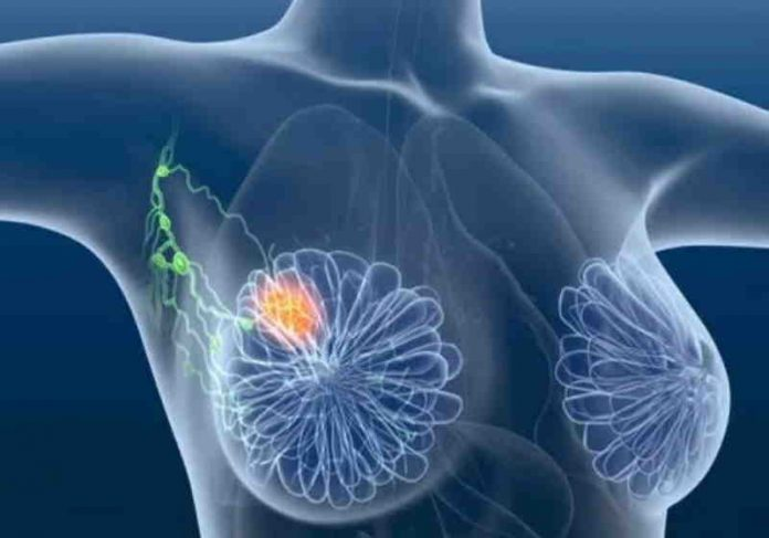 equipe de médicos e cientistas do Centro Nacional do Câncer de Cingapura identificou um novo método para tratar o câncer de mama triplo-negativo Foto: reprodução