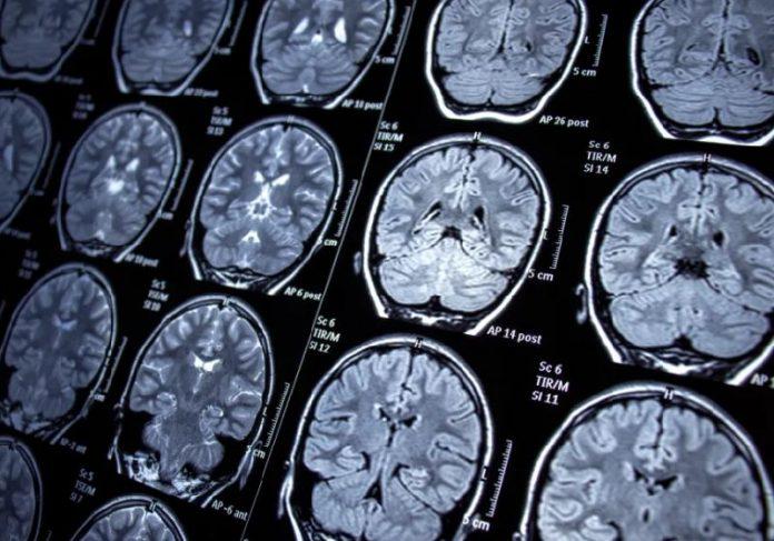 O tratamento para depressão que usa dispositivo implantado no cérebro saiu na Nature - Foto: Getty Images